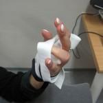 handspalken voor flexie PIP