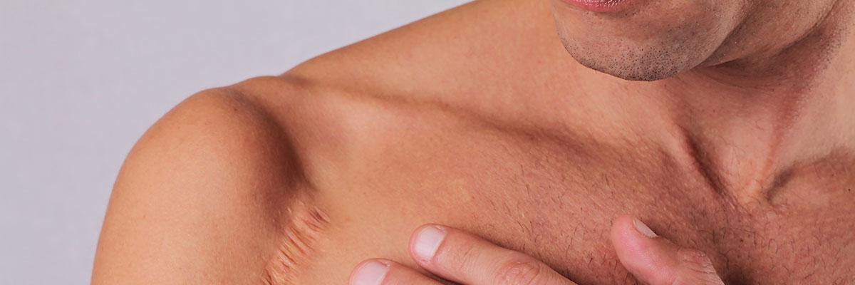 littekenbehandeling-001