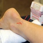 dry needling achillespees